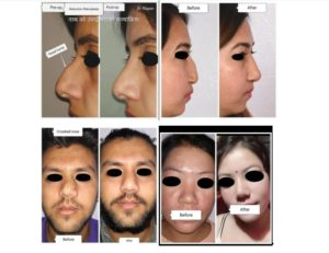 Rhinoplasty-before-after-changes